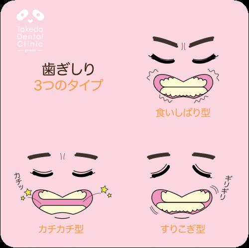歯ぎしり-01